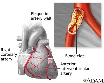 blocked coronary artery