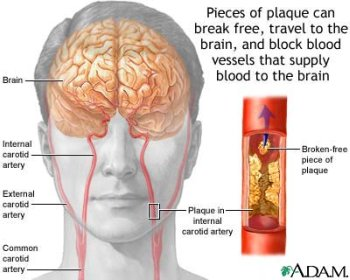 Plaque can block blood supply