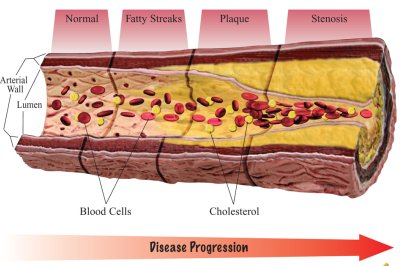 oxidized cholesterol leads to atherosclerosis
