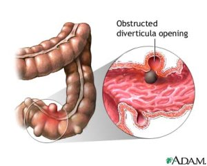 obstruction of a diverticulum