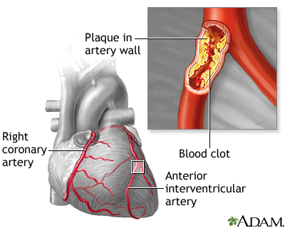blocked artery