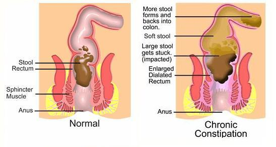 What Everybody Ought to Know About the Causes of Constipation