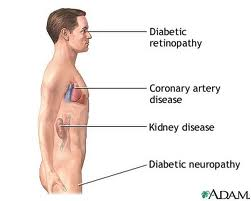 Read about the Complications of Diabetes