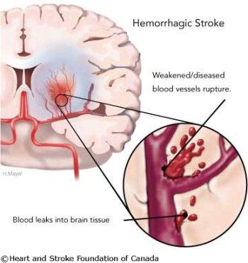bleeding stroke