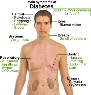 Read about the Symptoms of Type 2 Diabetes