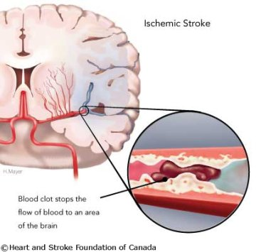 ischaemic stroke due to a blood clot